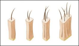 Hair transplant follicular units