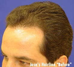 Before Hair Transplant Photo
